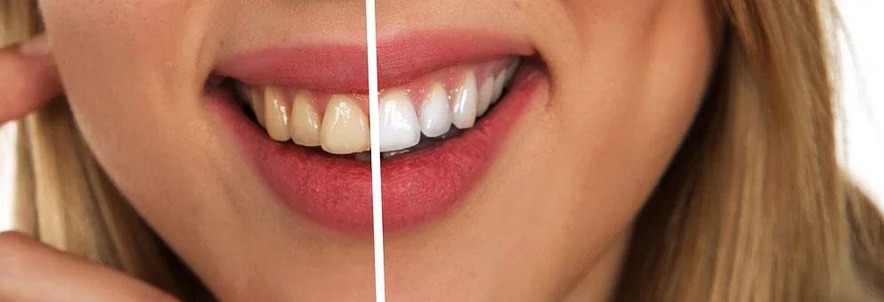 Blanchiment des dents blanche et jaune sur sourire